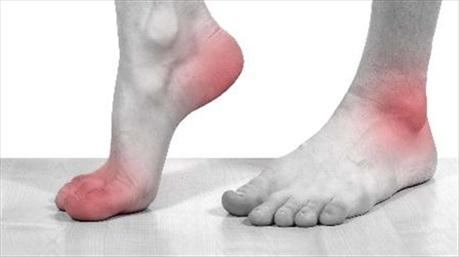 Điều trị gout: khó mà dễ!