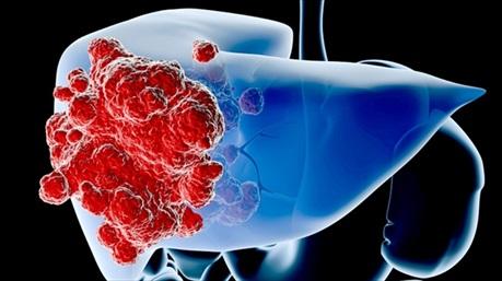 5 bệnh ung thư dễ chết, khó phát hiện sớm ai cũng phải đề phòng