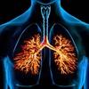 Căn bệnh hô hấp khiến 3 triệu người tử vong
