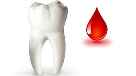 Chảy máu chân răng là triệu chứng bệnh nguy hiểm?