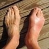 Bệnh gout và những biến chứng cực kỳ nguy hiểm