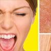 9 cách chữa MỤN TRONG TAI nhanh và hiệu quả