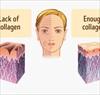 10 loại thực phẩm giàu collagen có thể làm chậm lão hóa da