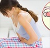 Những loại thực phẩm ngăn ngừa UNG THƯ CỔ TỬ CUNG phụ nữ nên biết