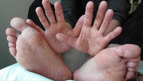 BỆNH TAY CHÂN MIỆNG và những biến chứng khó lường của bệnh
