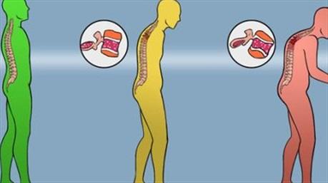 Xương của bạn càng ngày càng yếu, hãy làm theo cách này để giữ xương luôn chắc khỏe