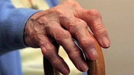 Đau đầu gối khi leo cầu thang: dấu hiệu đầu tiên của bệnh viêm khớp