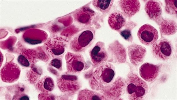 Sự thật về ung thư- Tại sao căn bệnh này bị coi là kẻ sát nhân toàn cầu?