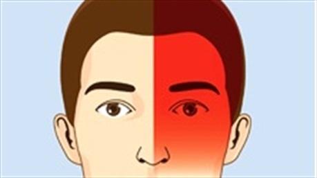 Phân loại và tìm hiểu nguyên nhân gây ra các cơn đau đầu