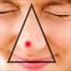 Nặn mụn vùng 'tam giác tử thần' trên mặt có thể gây tử vong