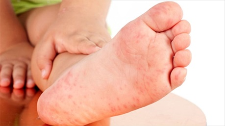 14 dấu hiệu ở chân cảnh báo các bệnh nguy hiểm, đi khám ngay kẻo hối không kịp