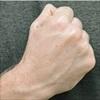 7 bài tập giúp giảm tình trạng đau của chứng viêm khớp tay