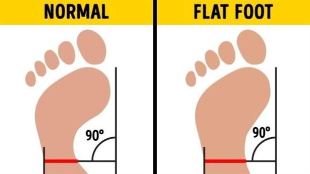 Bạn có biết hội chứng 'bàn chân dẹt' có thể phá hủy đầu gối của bạn - Hãy thực hiện các bài tập này để hạn chế hậu quả