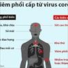 Cách phân biệt dấu hiệu nhiễm virus corona và cảm, sốt thông thường