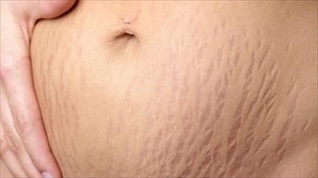Rạn da ở mẹ bầu và những cách khắc phục đơn giản