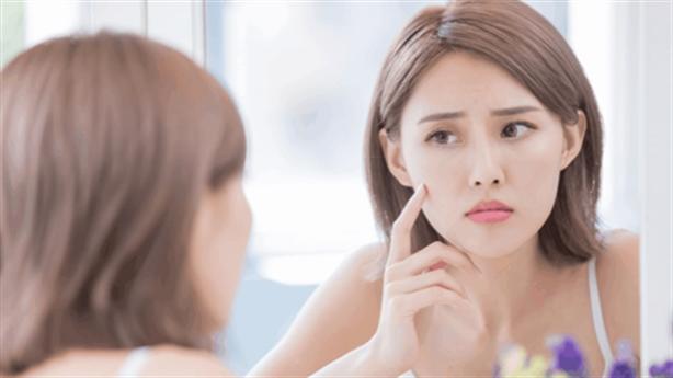 Bất kỳ vị trí mụn nào trên mặt cũng là dấu hiệu cảnh báo tình trạng sức khỏe của bạn