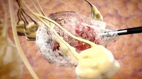 Đột phá Y học: Đóng băng khối u để chữa khỏi ung thư vú