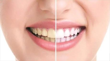 Nếu đang đau đầu vì răng ố vàng, thử ngay cách khắc phục đơn giản mà hiệu quả này