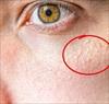 8 dấu hiệu cho thấy khuôn mặt bạn bắt đầu lão hóa nhanh hơn