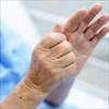 Sống gần khu vực đông đúc làm tăng nguy cơ phát triển bệnh Parkinson