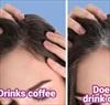 Khi ngừng uống cà phê, mái tóc bạn có thể gặp phải tình trạng tiêu cực này